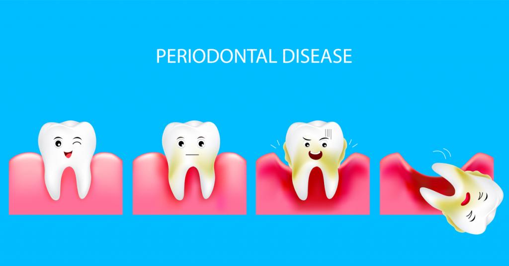 пародонтит, parodontiit