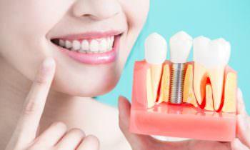 Hambaimplantaat