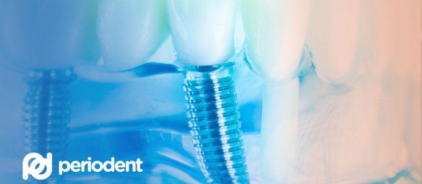 Implantaadi paigaldamine toob naeratuse taas Teie näole