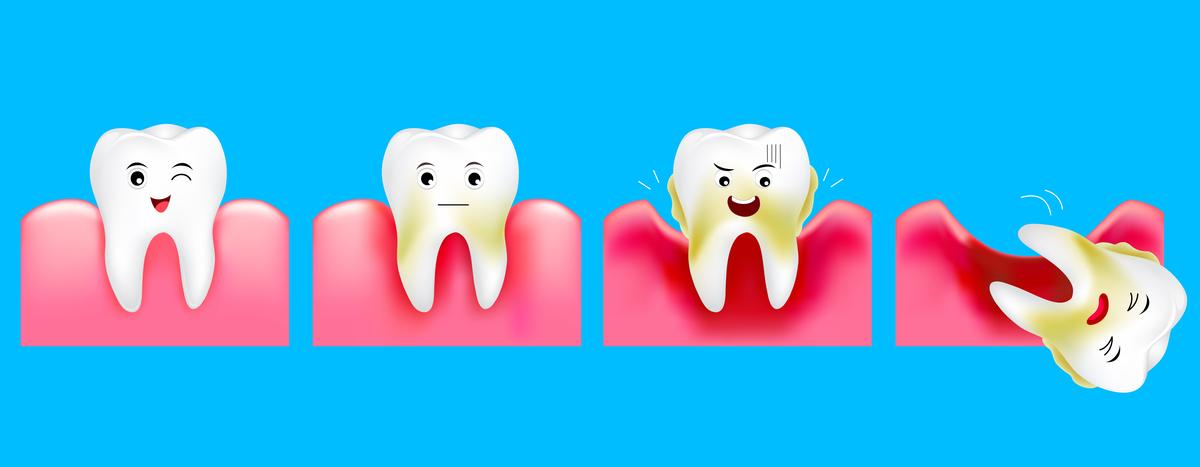 parodontiit