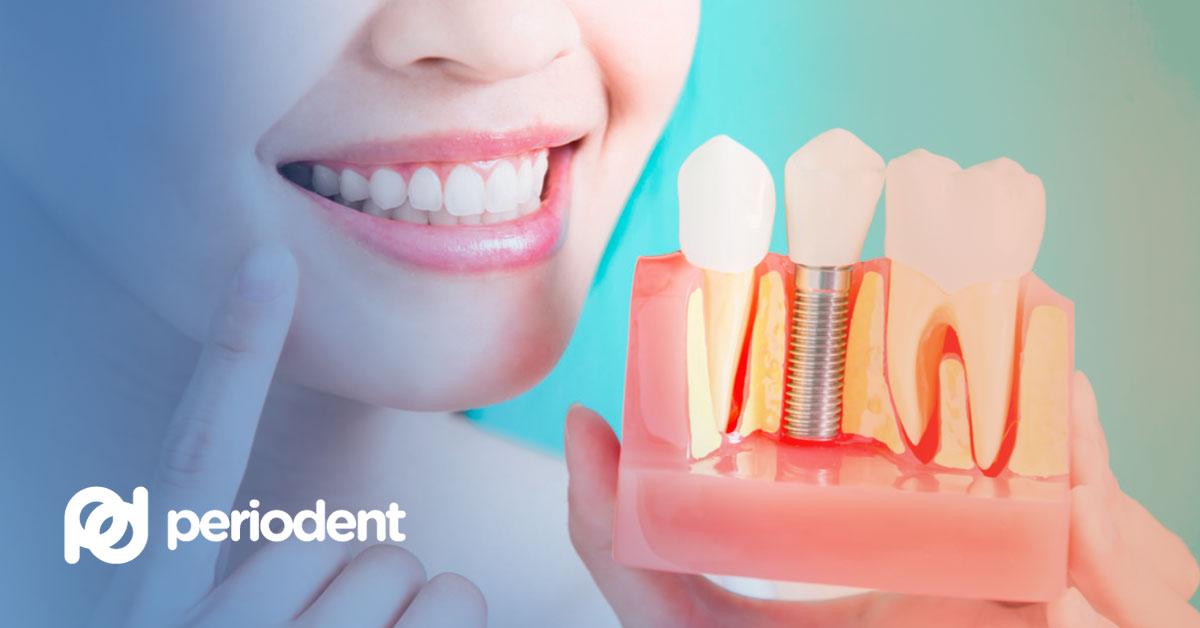 hambaimplantaat - mis see on ja kuidas hambaimplantaadi paigaldamine toimub