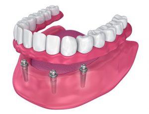 hambaprotees, mis kinnitub implantaatidele