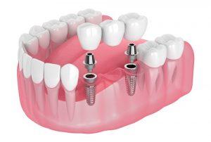 hambasild implantaatidel